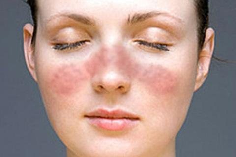 articulos-de-interes-lupus
