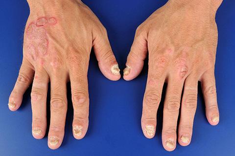 articulos-de-interes-artritis-psoriatica
